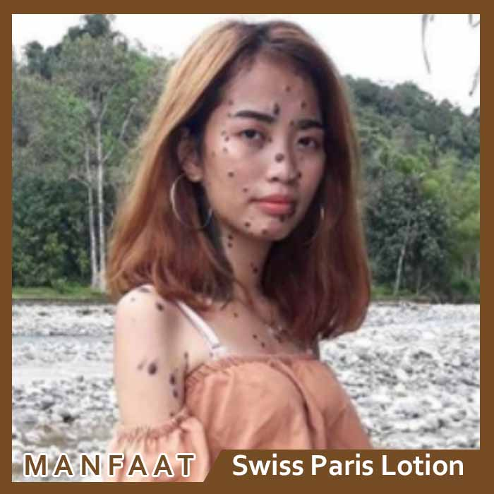 Efek Samping Swiss Paris Lotion