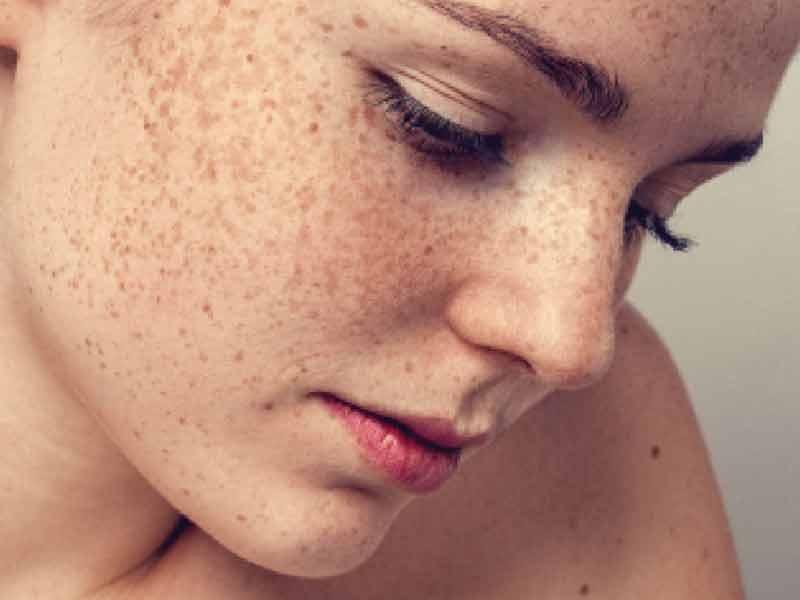 Manfaat Refaquin Skin Bleaching Cream