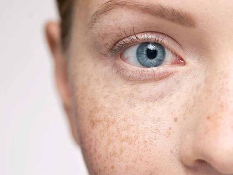 Review Lumiquin Cream Skincare