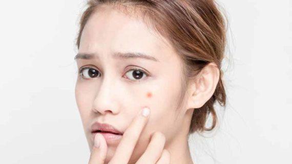 Kitoderm Acne Cream Adalah