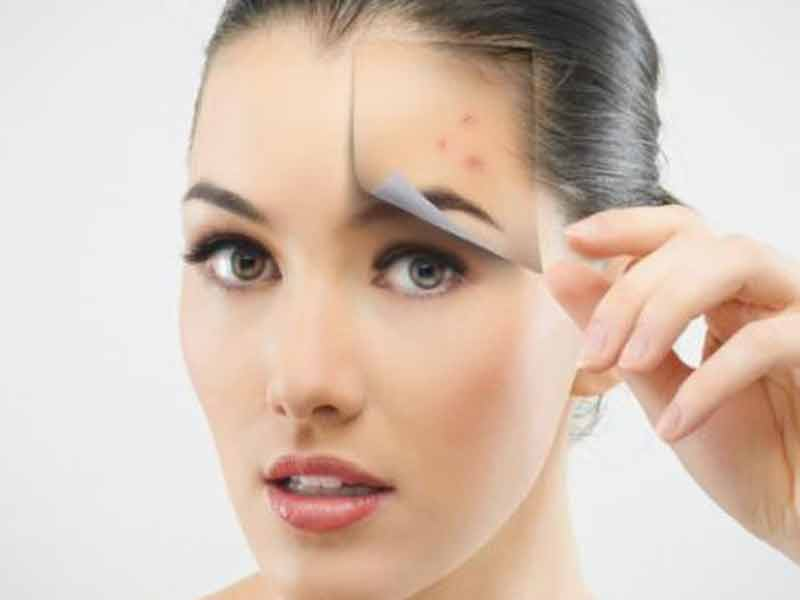 Efek Samping Kitoderm Bb Cream Whitening